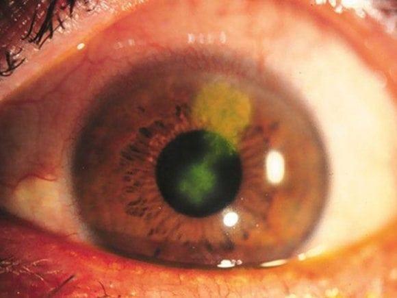 Herpes simplex keratitis dendritic ulcer