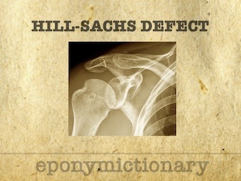Hill-Sachs defect eponymictionary
