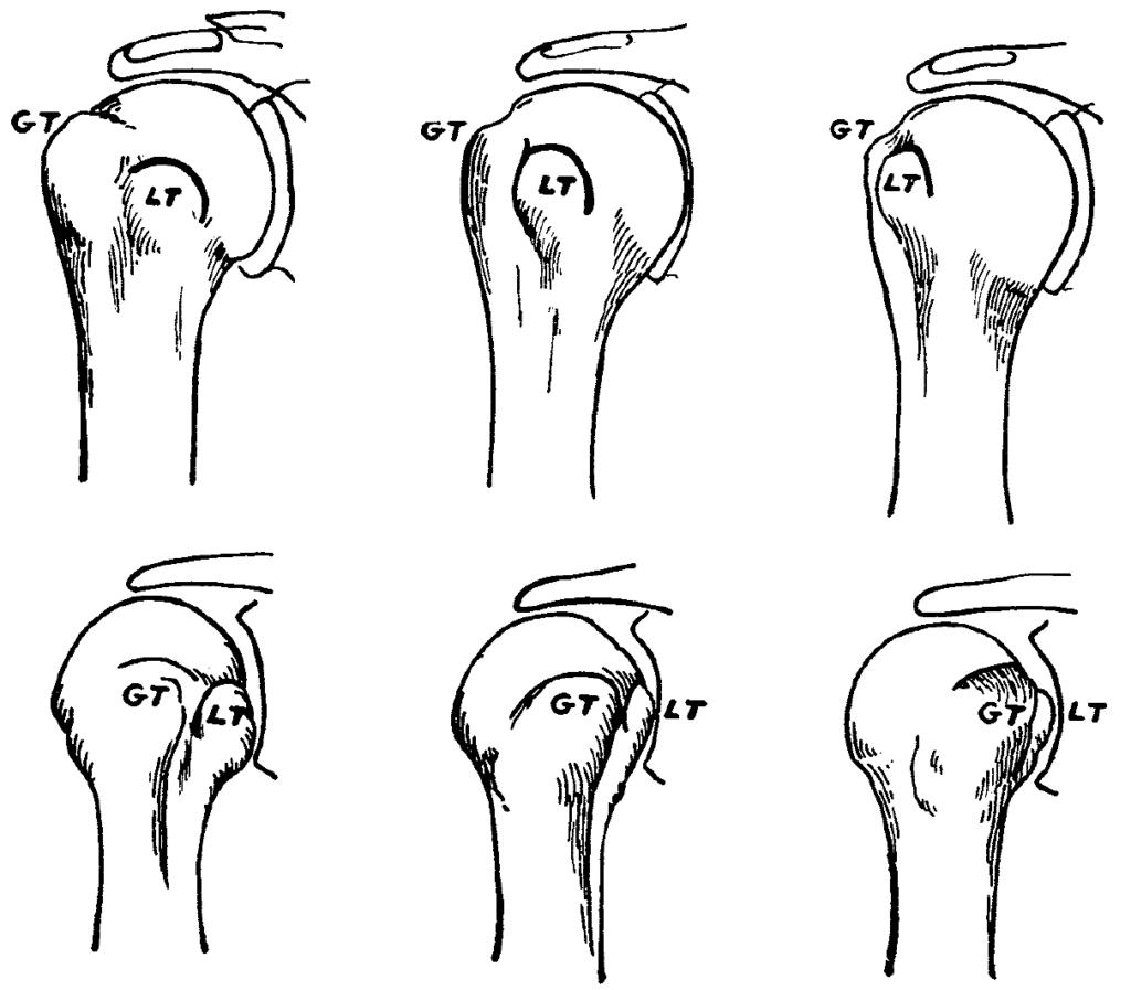 Hill-Sachs external internal rotation views shoulder