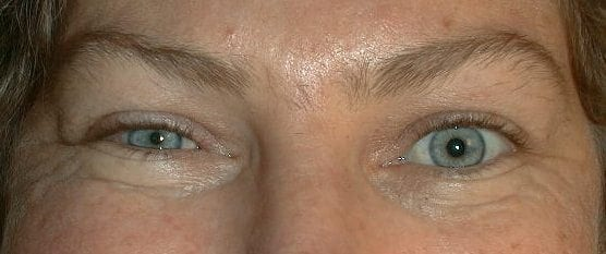 Horner syndrome right ptosis 2