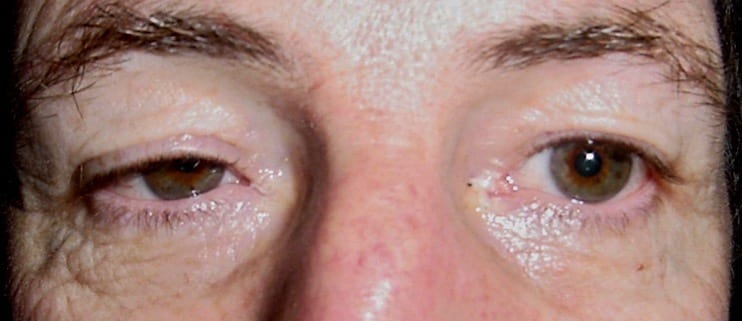 Horners right ptosis miosis flash