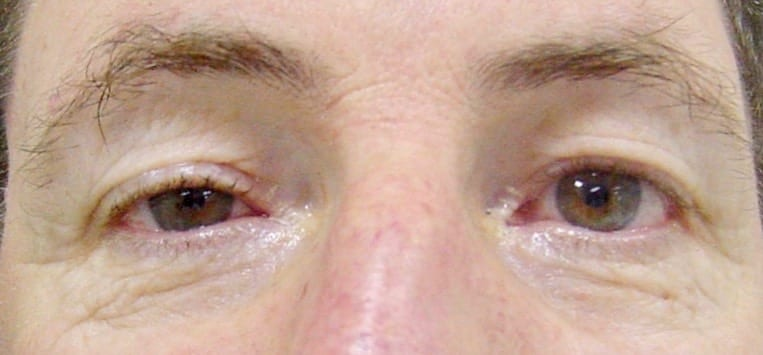 Horners right ptosis miosis no flash