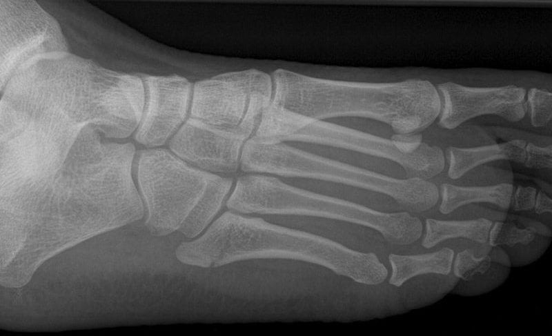 Jones Fracture 5th metatarsal fracture