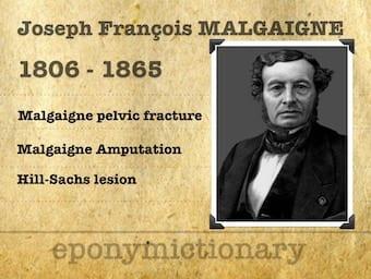 Joseph François Malgaigne (1806 – 1865) 340