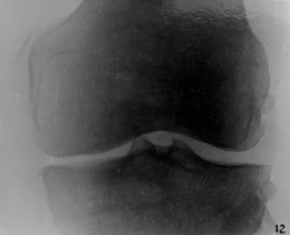 Köhler-Pellegrini-Stieda lesion 1905 Köhler Fig 12