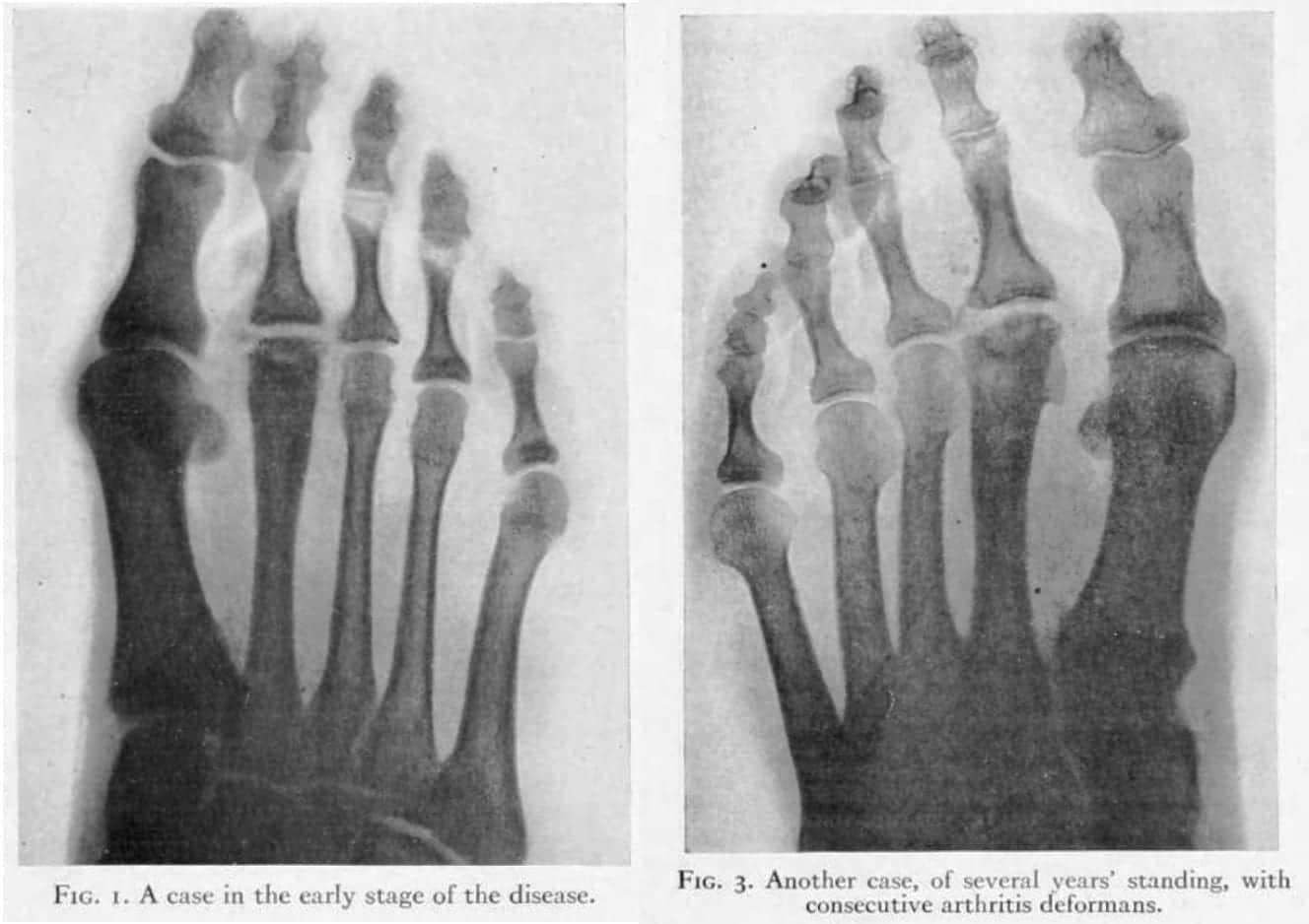 Kohler-disease-II-Freiberg-infraction