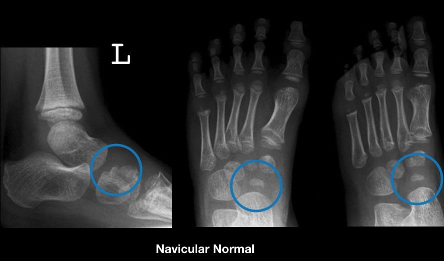 Left normal navicular comparison - 5 year old male