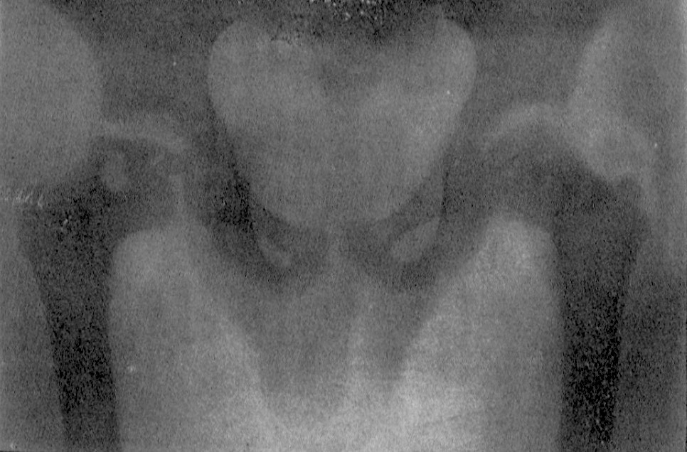 Legg 1910. Case V. Showing flattened head, with thickened neck. A distinct necrotic area is seen in the neck