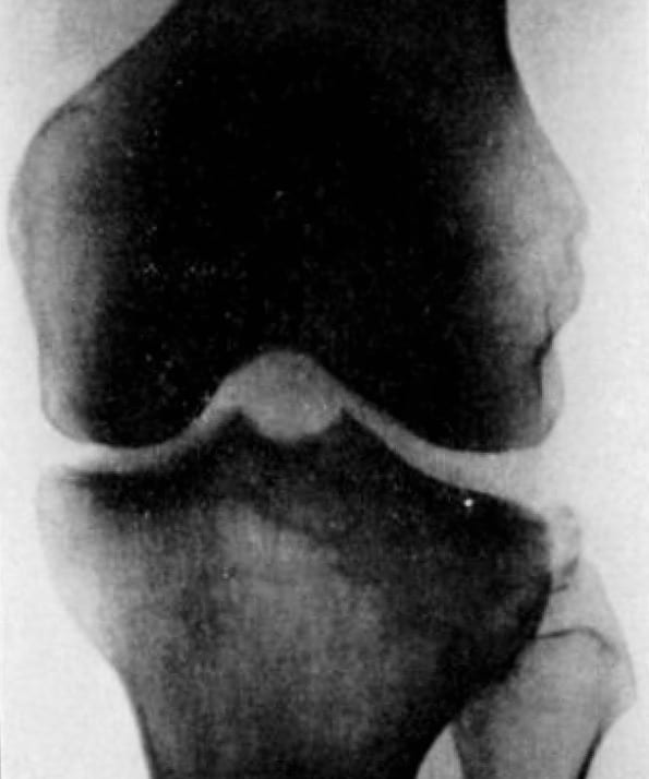 Milch H. Cortical avulsion fracture of the lateral tibial condyle 1936