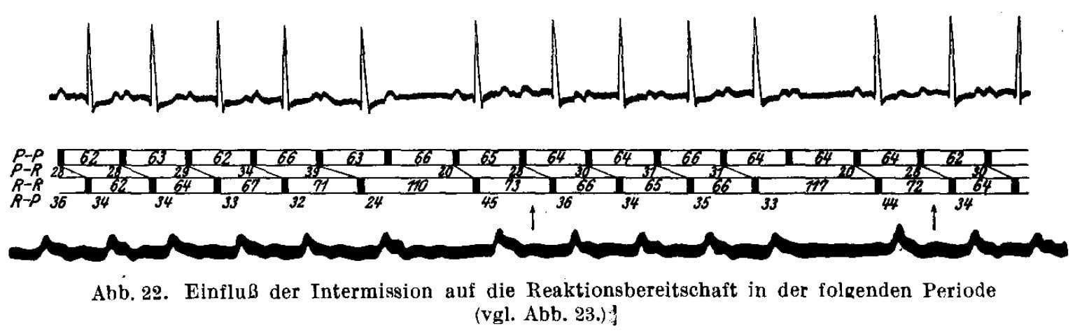 Mobitz-Type-I-Wenckebach-1924