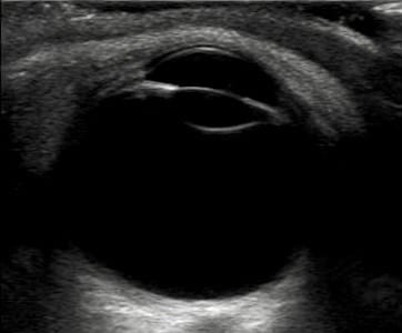 Ocular ultrasound EYE normal