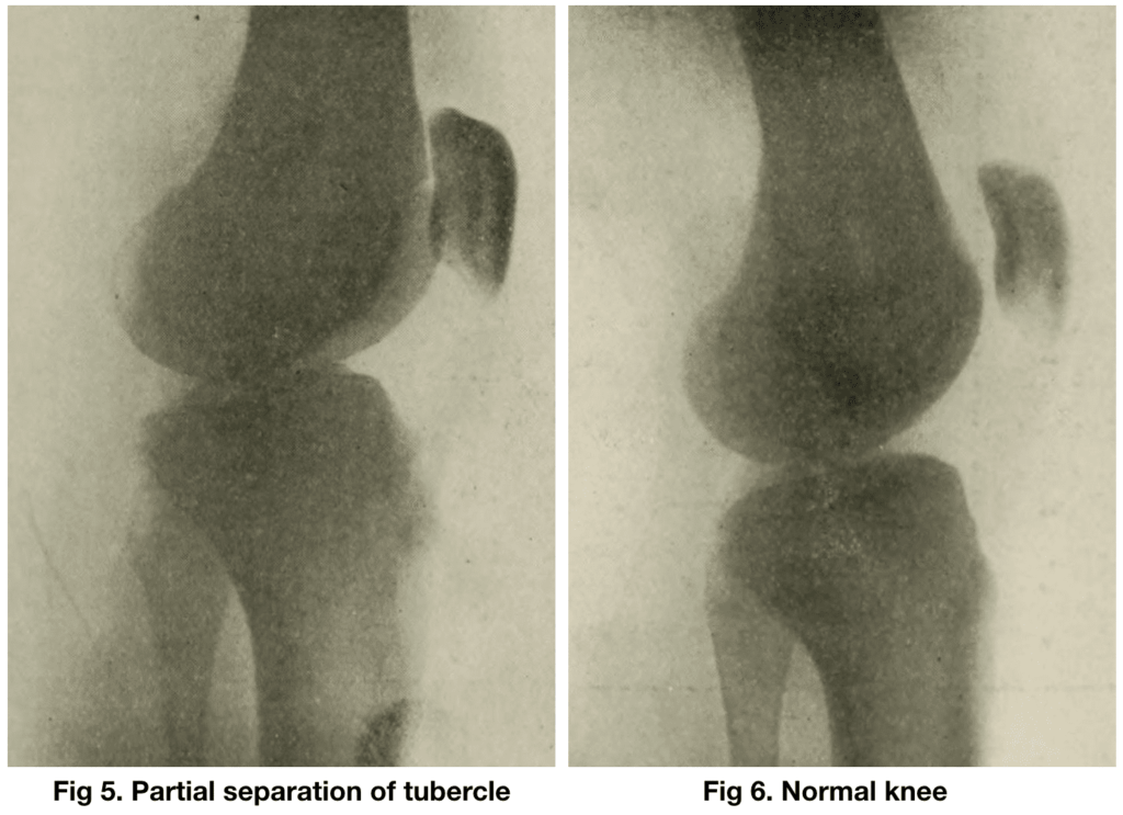 Osgood RB. Lesions of the tibial tubercle occurring during adolescence 1903