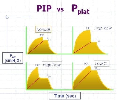 PIP vs Pplat