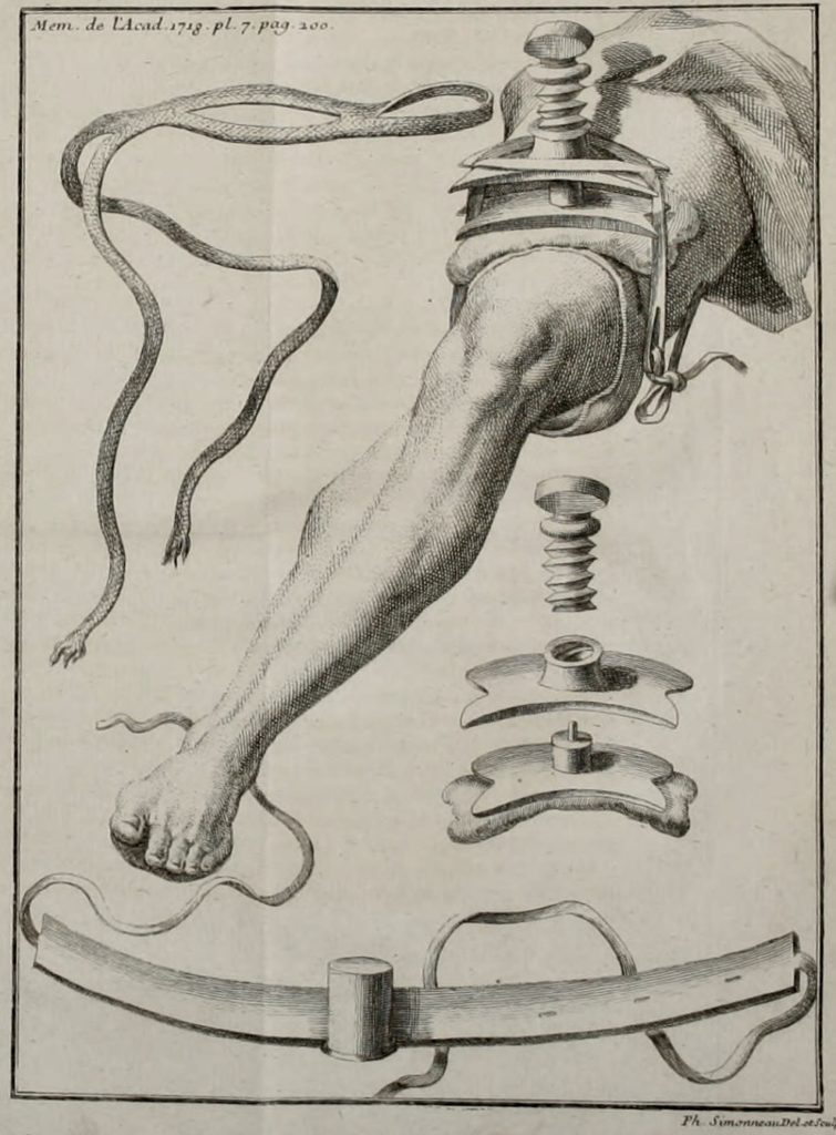 Petit Tourniquet 1718