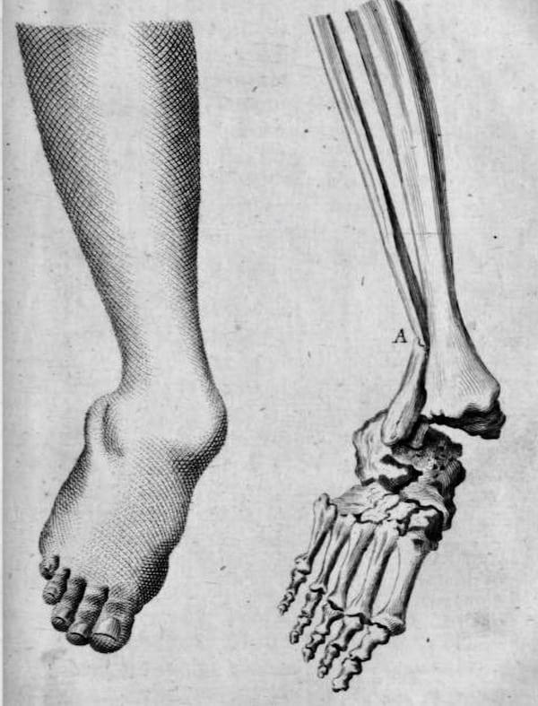 Pott-fracture
