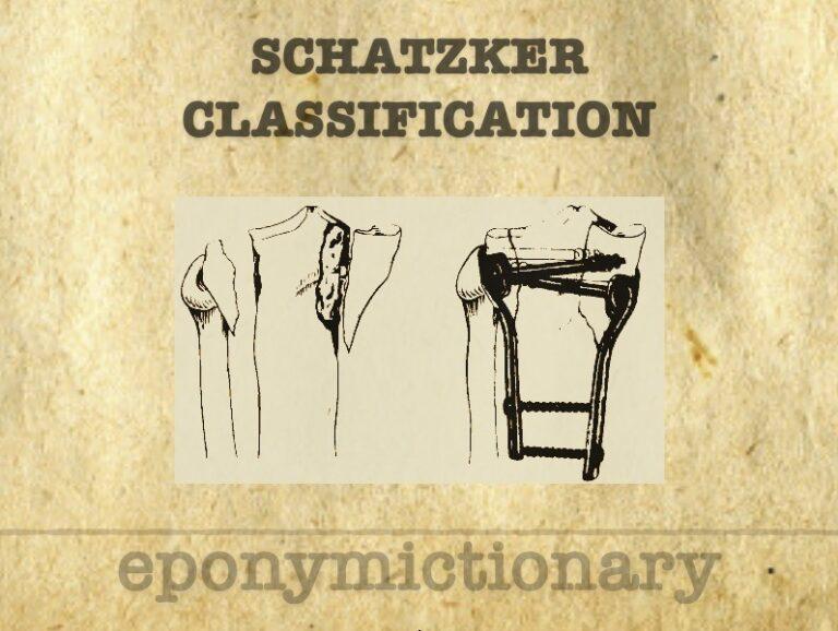 Schatzker classification 340 1
