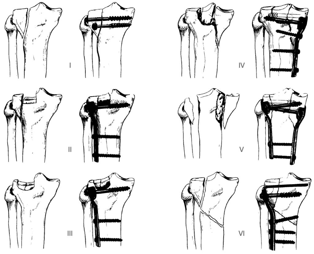 Schatzker classification of tibial plateau fractures (1979)