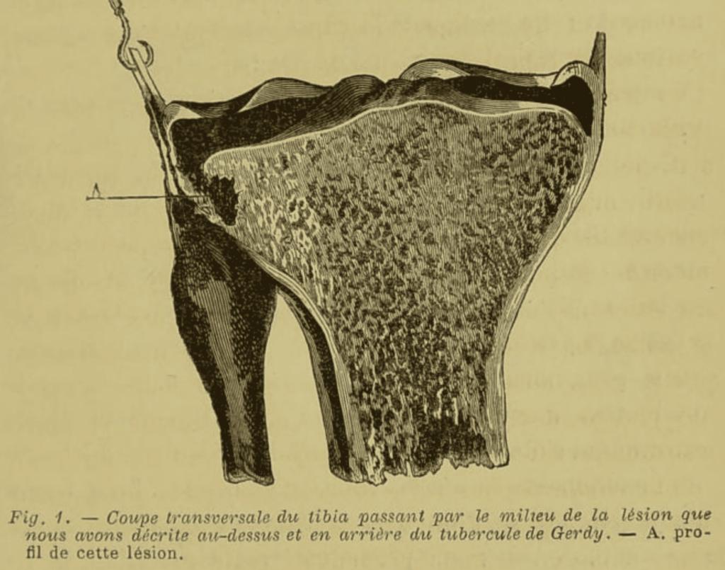 Segond fracture Recherches cliniques et expérimentales sur les épanchements sanguins du genou par entorse 1879