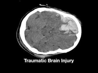 Traumatic Brain Injury 340
