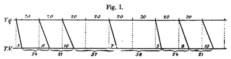 Wenckebach periodicity Type I AV block