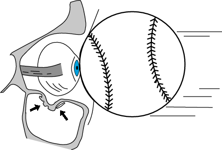blowout fracture ball to eye diagram