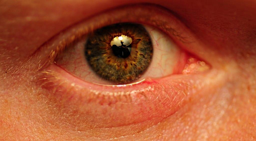 eye hordeolum stye chalazion