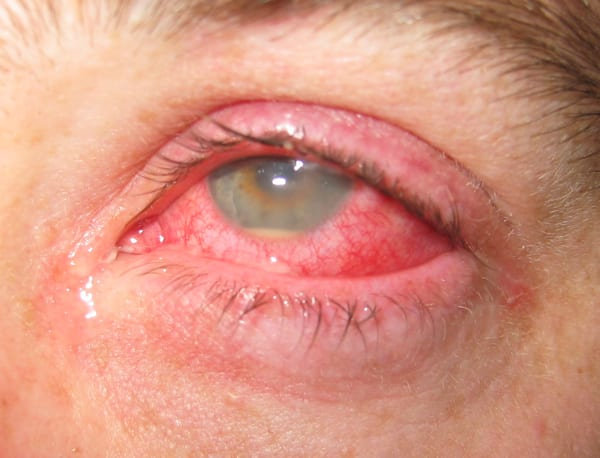 red-eye-hypopyon EYE CASES