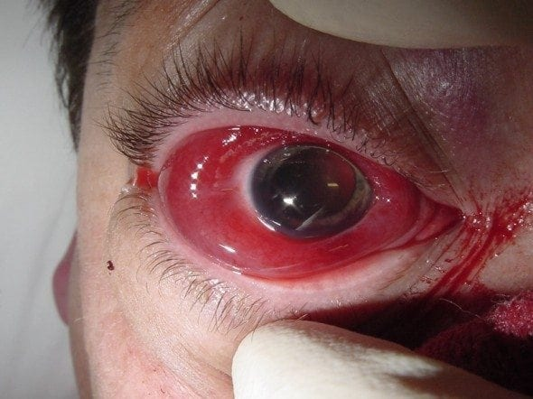 retrobulbar hemorrhage EYE trauma