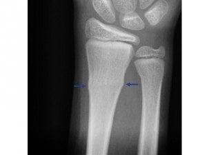 torus-fracture-300x225
