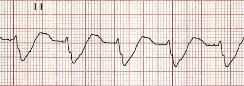 Broad-QRS-no-P-waves-hyperk
