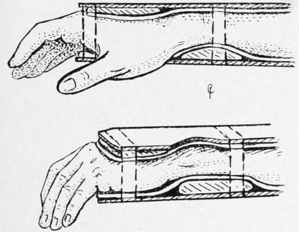Cotton-Loder position post Colles reduction 1910