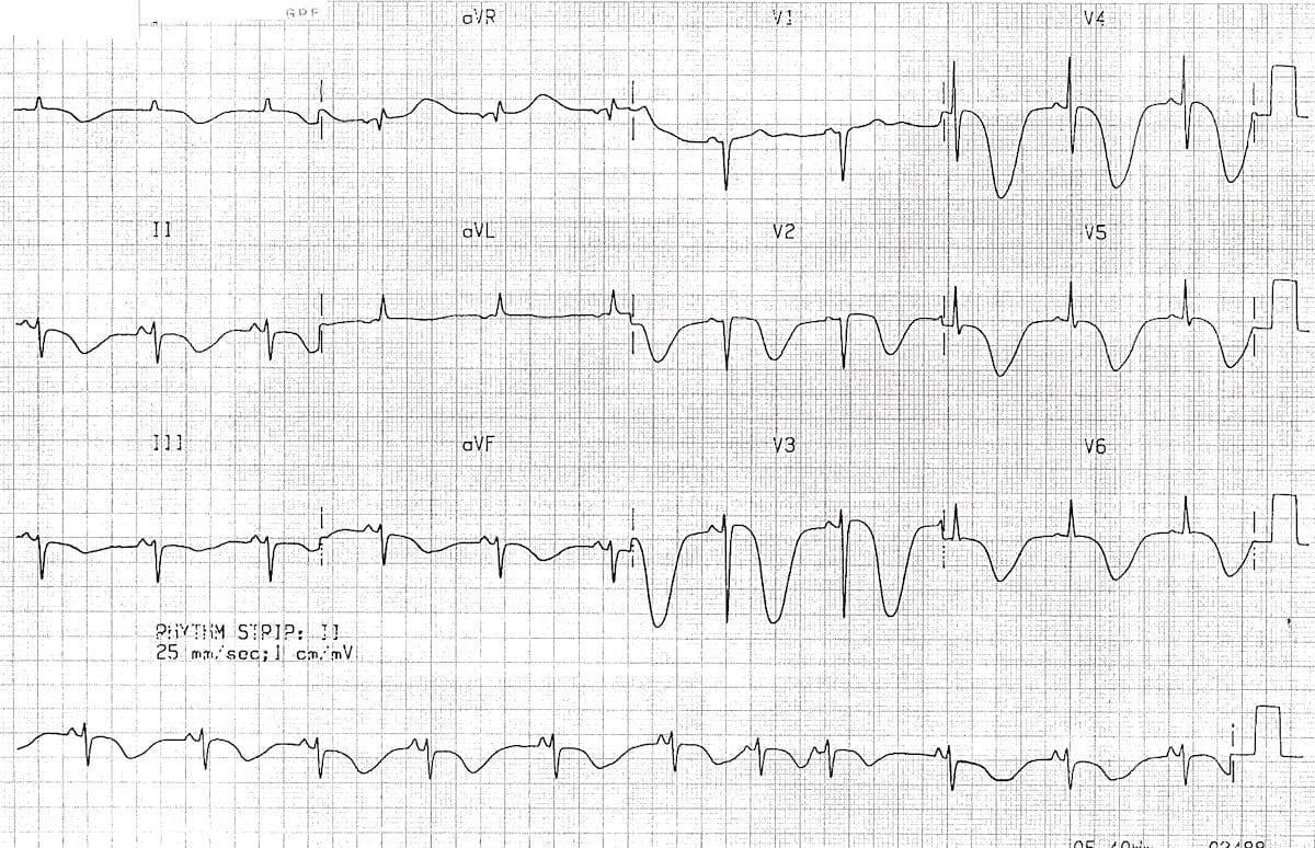 Killer ECG Patterns • LITFL Medical blog • ECG Library
