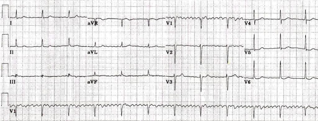 Regularised Atrial fibrillation digoxin