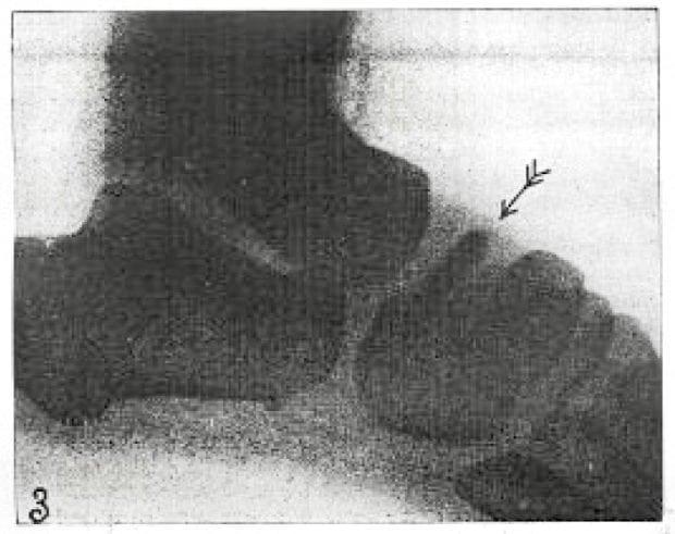 Kohler 1908 fig 3 erkranktes os naviculare