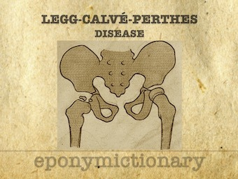 Legg-Calvé-Perthes disease 340