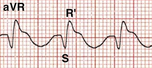 Positive R' wave in aVR