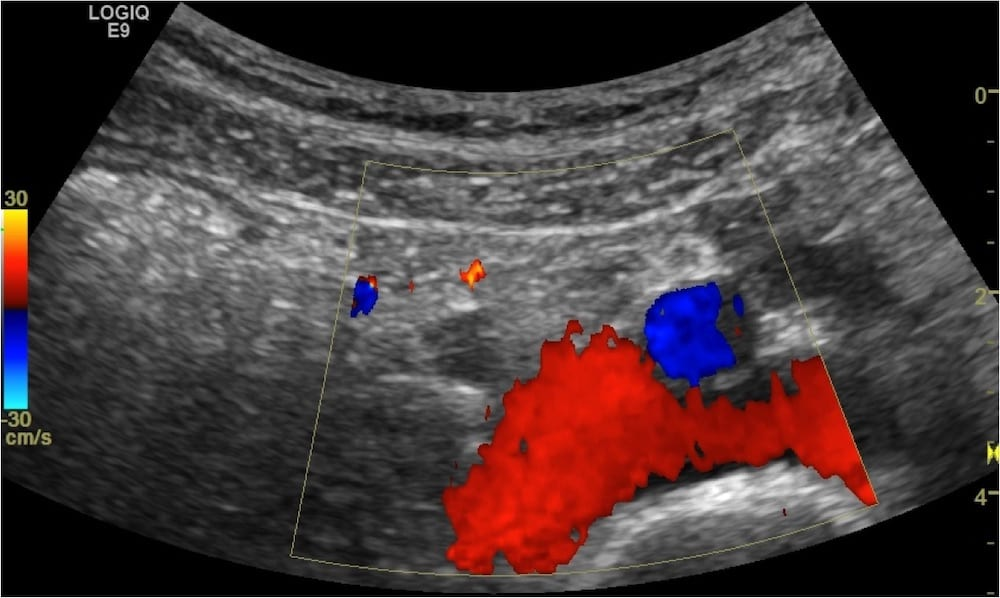 Renal ultrasound Distal VUJ Case 001 04