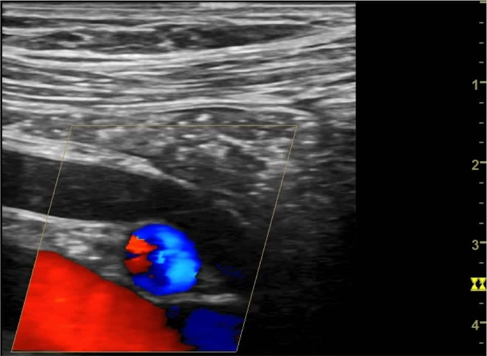 Renal ultrasound Distal VUJ Case 001 05