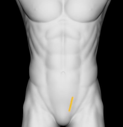 Renal ureter VUJ Long Left