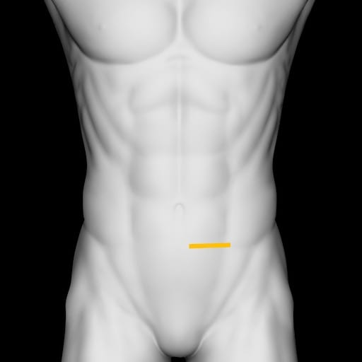 Renal ureter pelvic brim trans left