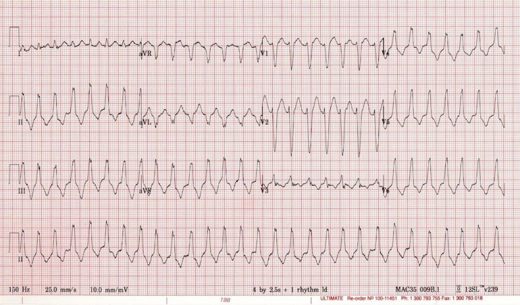 Right Ventricular VT ARVD
