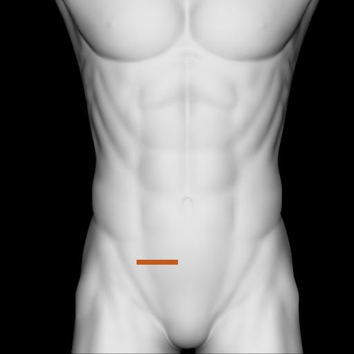 Ultrasound RIF
