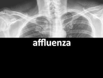 affluenza 340