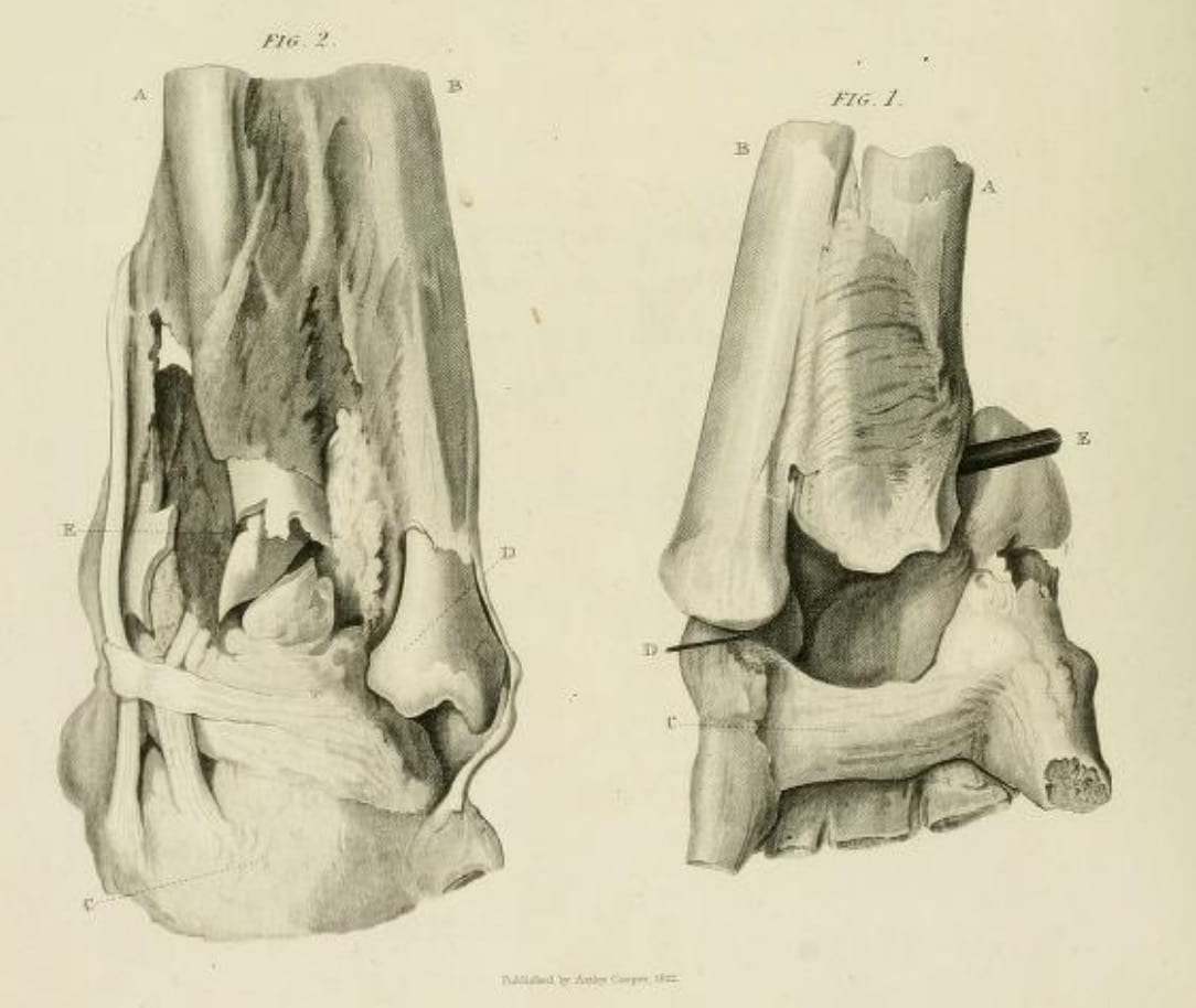 radius-fracture-ulna-dislocation Astley Cooper 1822