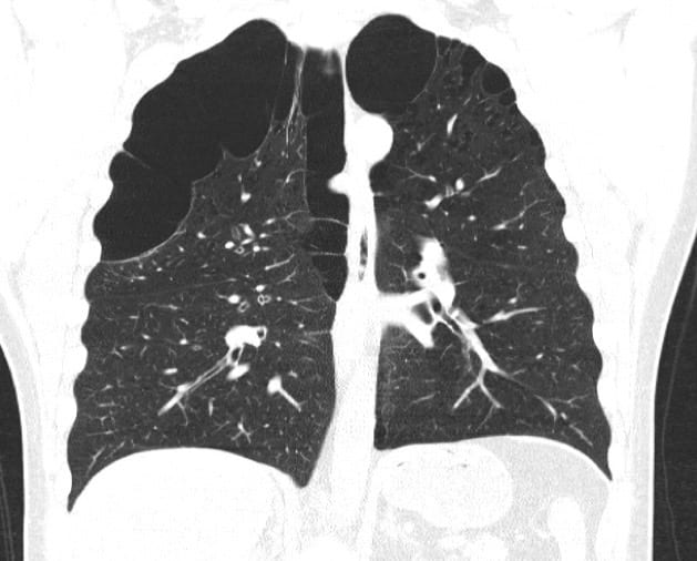 COPD Bullae lung CT chest
