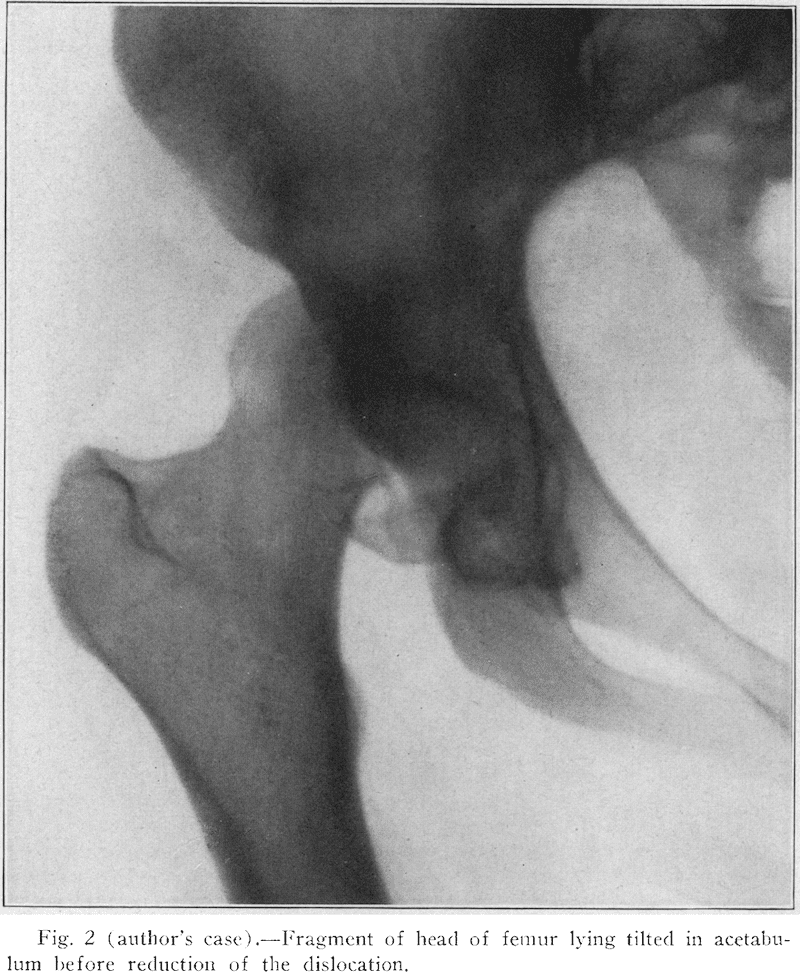 Christopher 1924 femoral head fracture