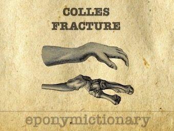 Colles-fracture-distal-radius-LITFL 340 2