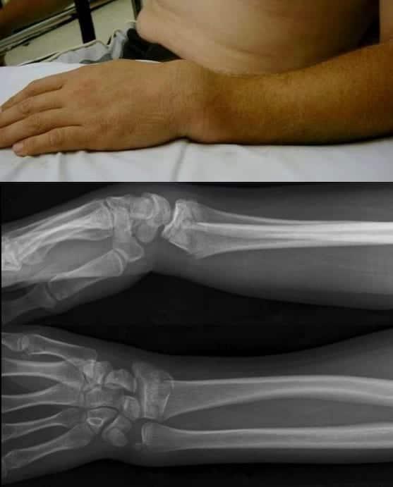 Colles fracture distal radius LITFL