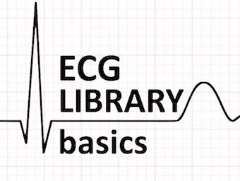 ECG-LIBRARY-basics-LITFL-340 3
