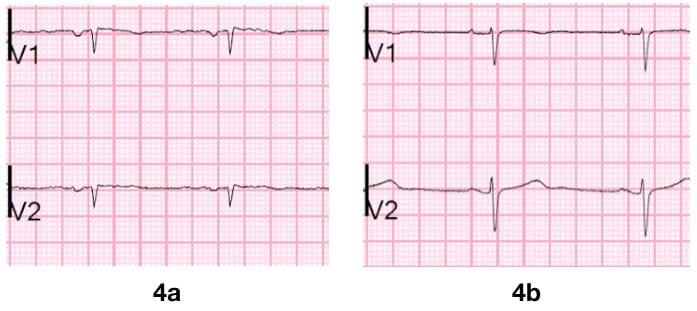 Figure 4 Old septal MI q waves Smith S